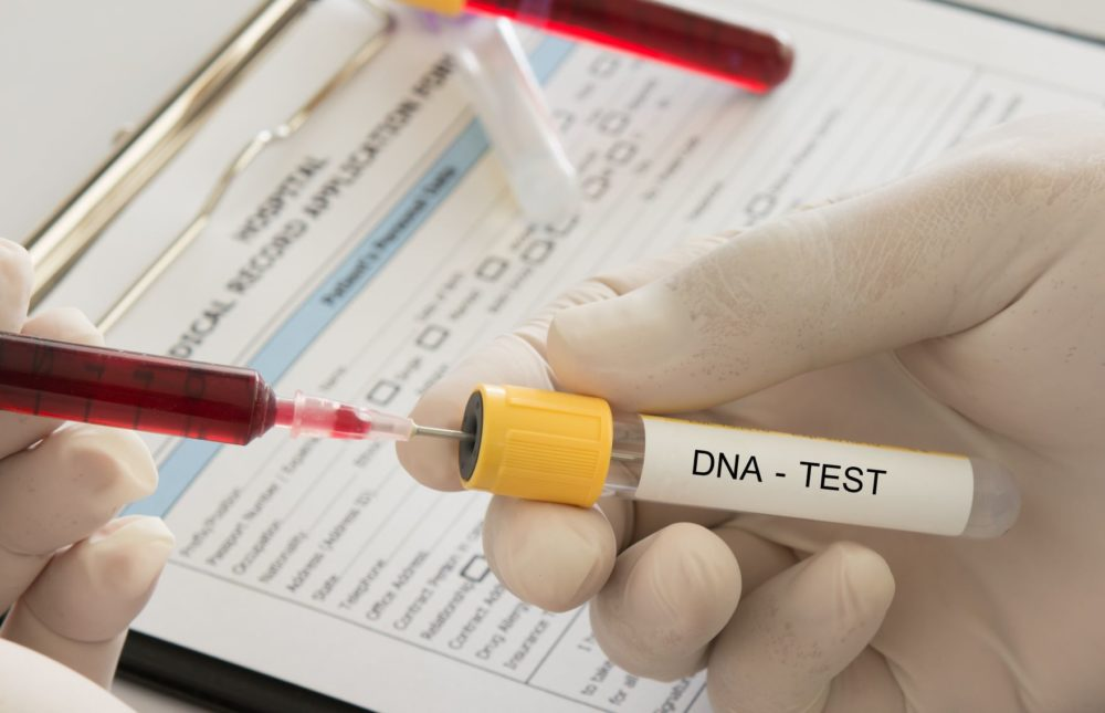 DNA test sampling tube